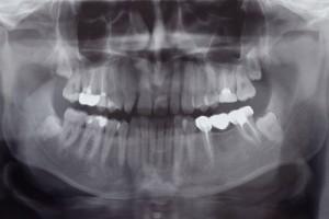 Saratoga Springs NY Family Dentist