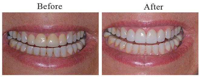 Saratoga-Springs-NY-Dentist