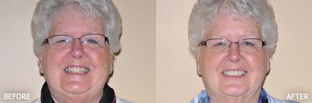 Dentist in Saratoga Springs